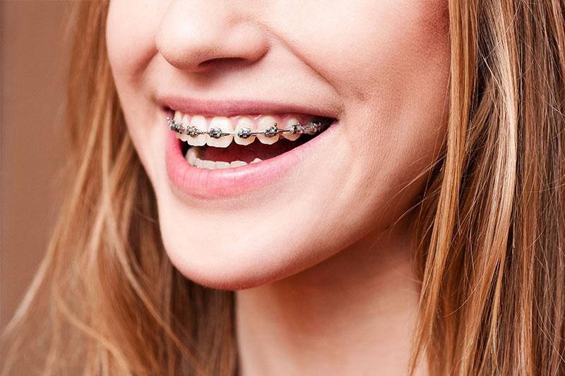 Orthodontics in La Jolla