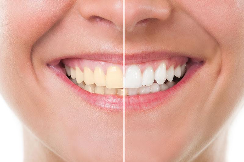 Teeth Whitening in La Jolla